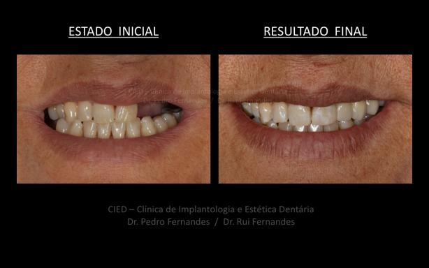 Foto 2 de CIED, Clínica de Implantologia e Estética Dentária
